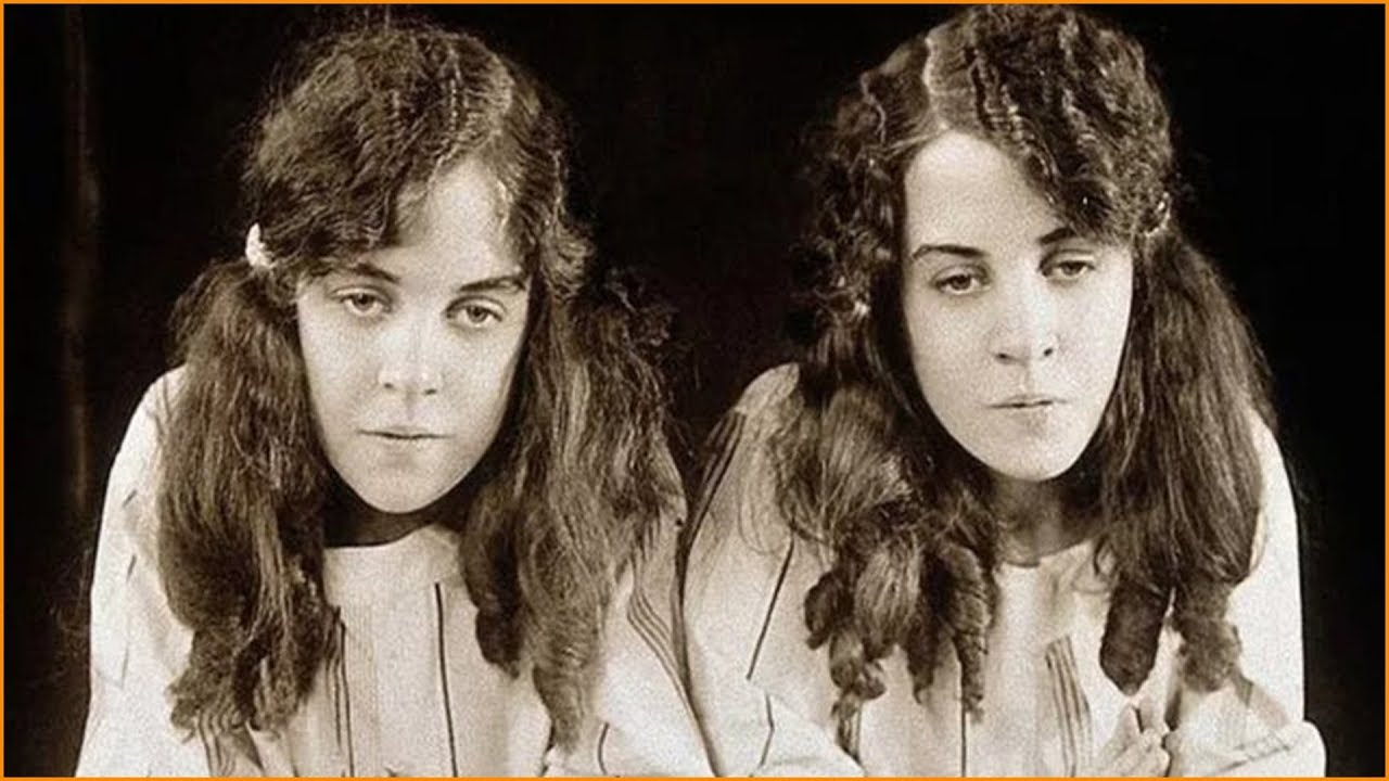 Tragic Lives Of Conjoined Twins Daisy And Violet Hilton