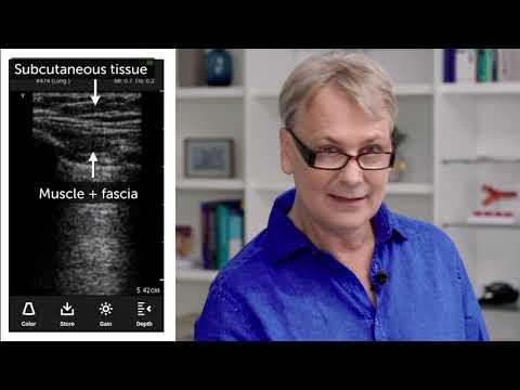 Poate osteopata vindeca vene varicoase