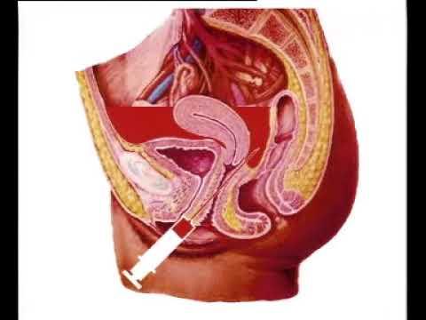 卫生部医学视听教材—妇产科—FC037 异位妊娠