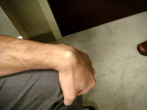 Bewertungen von Operationen am Kniegelenk