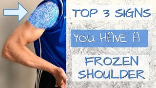 Top 3 Signs You Have A Frozen Shoulder. 3 Self-Tests You Can Do (Adhesive Capsulitis)