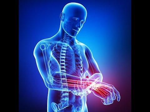 Sia le compresse influenza della pressione sulle articolazioni