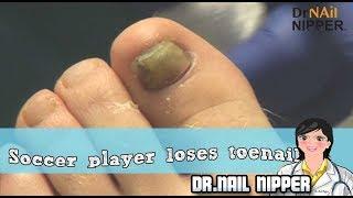 Soccer Player Loses His Big Toenail - Sports Foot Injury