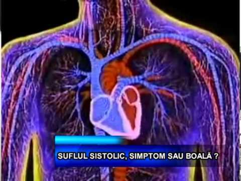 Indicarea hipertensiunii pulmonare moderate