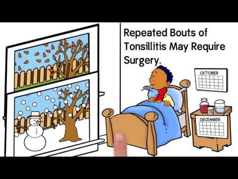 Ureablasm és prostatitis kezelés