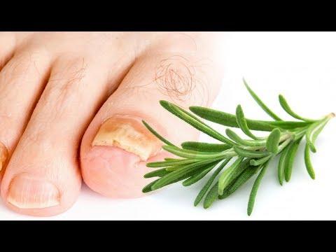 El hongo de las uñas el tratamiento el aceite acético