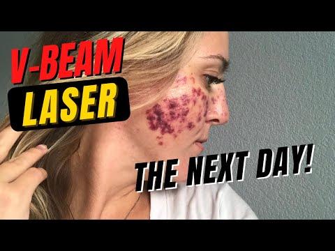 Tratamentul cu laser varicos varicos în prețul cherepovets