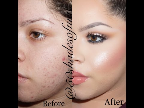 HOW TO COVER ACNE ACNE SCARS and UNDER EYE CIRCLES