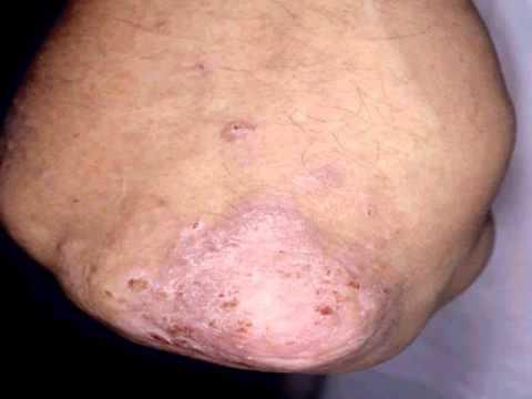 La fédération internationale des associations malade du psoriasis