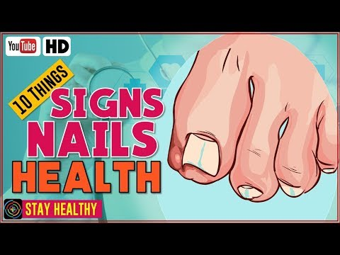 Video 10 Things Your Nails Can Reveal About Your Health ???? Nails Health Signs