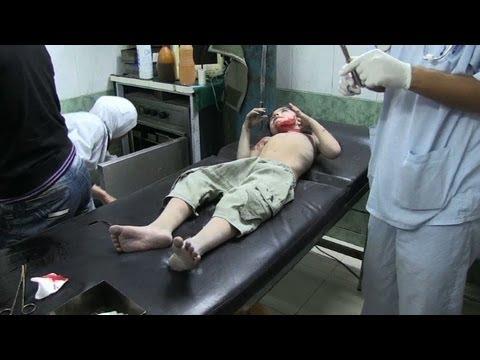 Heridos en los hospitales de Alepo