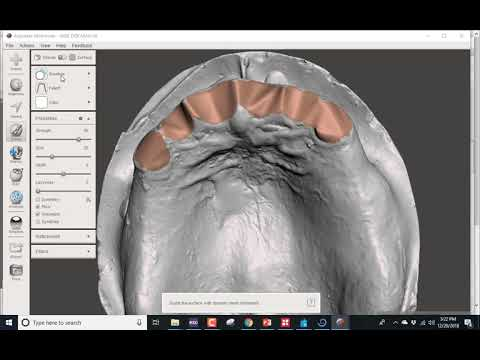 Immediate Denture Design in Blue Sky Plan