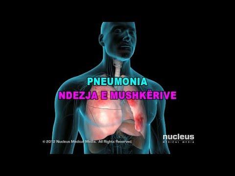 Trajtimin e hipertensionit pikatore