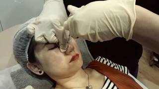 Dermal fillers on Nose and Chin by Dr Nigel Ong