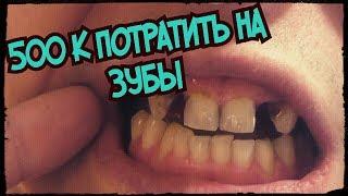 В 20 лет проблемы с зубами