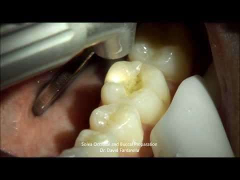 Solea Laser Occlusal Preparation - Dr. David Fantarella