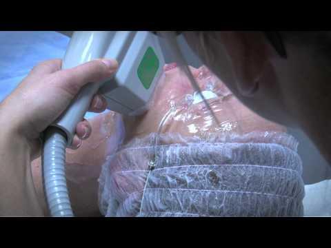 Candele per cura di emorroidi interne e incrinature