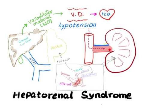Le diagnostic clinique de crise hypertensive