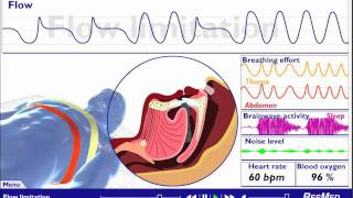 Understanding Sleep Disordered Breathing