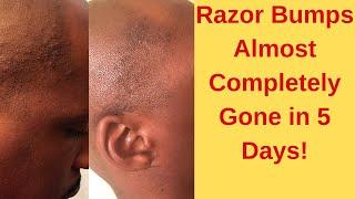 Razor Bumps Gone in 5 Days!