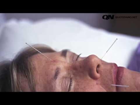 Agopuntura, gli aghi della salute