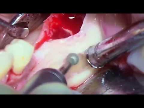 Удаление ретенированных дистопированных зубов нижней челюсти. Часть 1