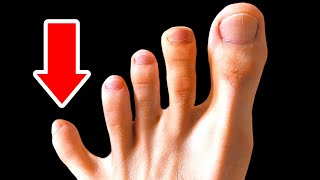 You Don't Need 5 Toes or 14 Other Body Features