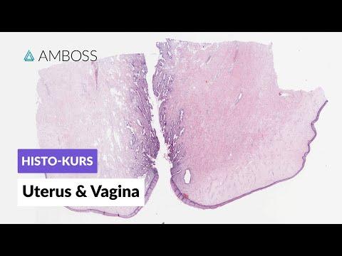 Exazerbation der benignen Prostatahyperplasie