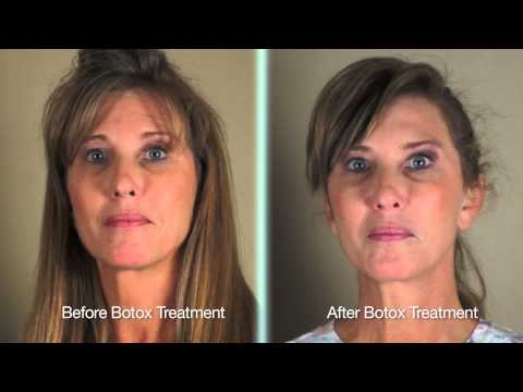 Botox for Synkinesis | Bell's Palsy Patient Testimonial