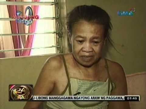 Breast cancer pagkatapos ng pagtitistis prosthesis