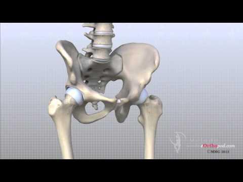 Artroza și simptomele și tratamentul artritei