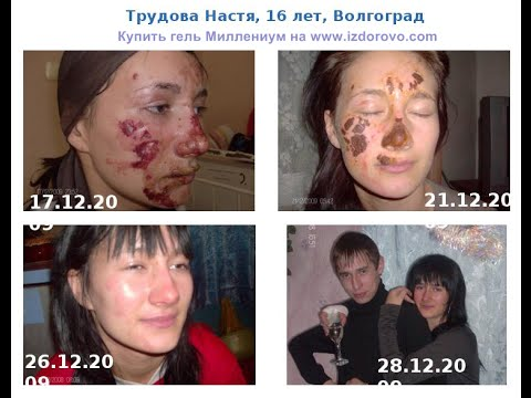 Маски отбеливающие и подтягивающие маски для лица