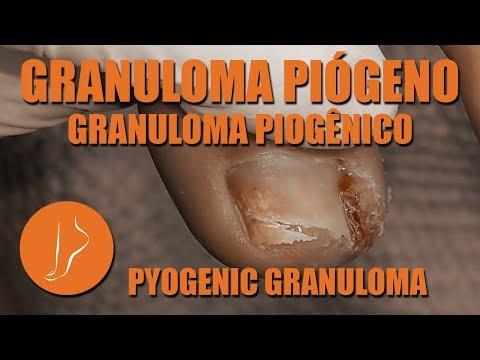 El hongo sobre la uña de las manos como curar