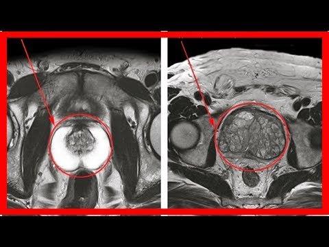 Signes dinflammation de la prostate chez les hommes