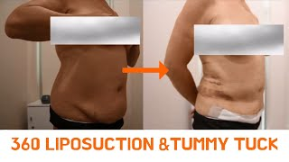 Susan's 360 Liposuction and Tummy tuck procedure-before and after