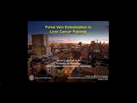 Vestibular papillomatosis discharge