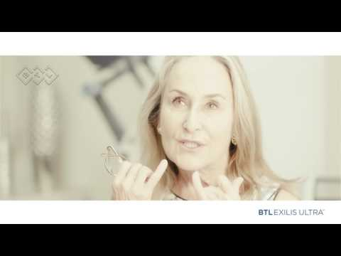 Carol´s face and lips experience with BTL Exilis Ultra