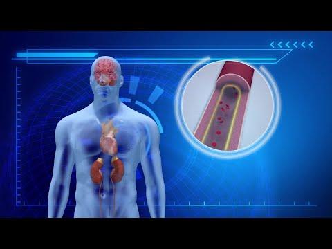 La théorie de la maladie hypertensive