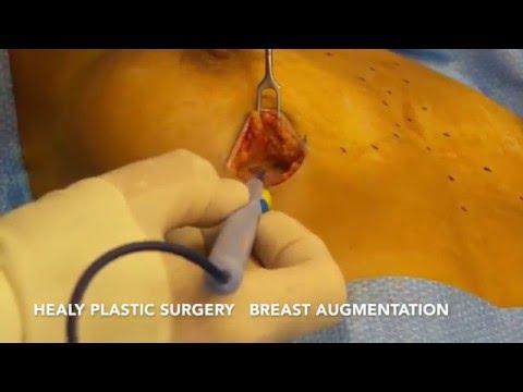 To nie wchodzi jeden po powiększania piersi implant