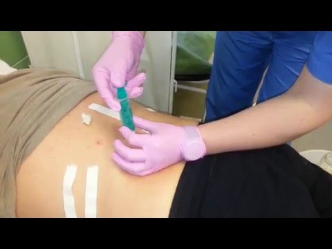 Как убрать боль на спине
