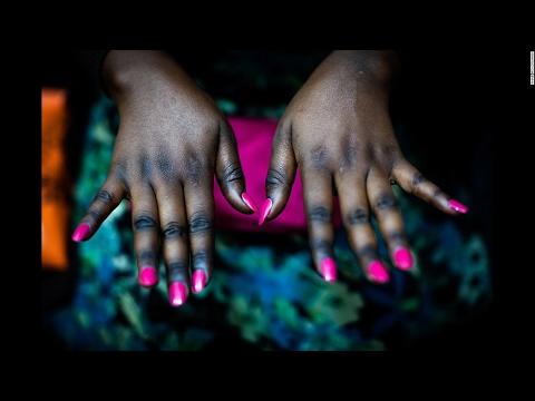 Le microorganisme végétal des ongles des mains le début