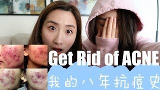 【我的八年抗痘血泪史】Get Rid of Acne Fast||拥有这些让痘痘滚出你的人生!!!