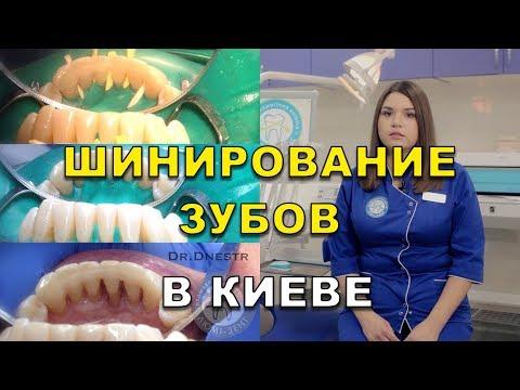 Шинирование зубов у стоматолога в Киеве - Люми-Дент
