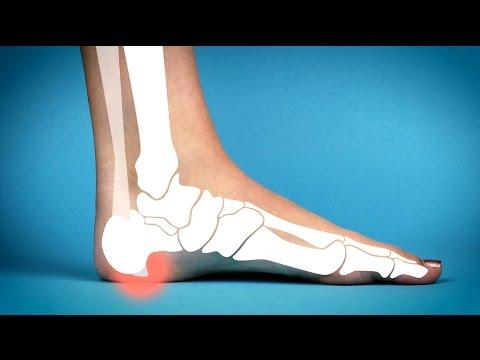 Physiotherapie Osteochondrose der lumbalen
