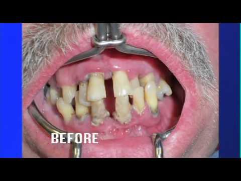 Teeth ~ No Dentures Dental Implants - Living Healthy Chicago