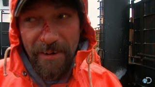 Captain Johnathan Hillstrand Breaks His Nose | Deadliest Catch