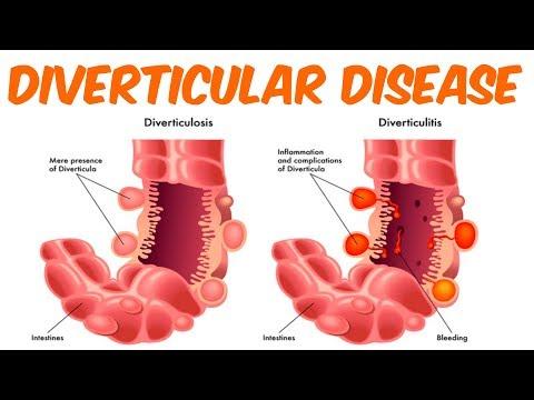 Detaje të krizës hypertensive