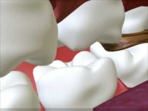 Dental Cavity – 3D Medical Animation