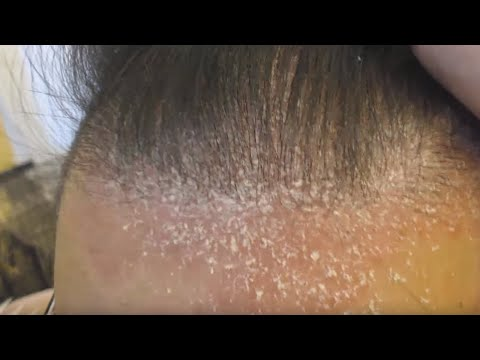 Video Dry Scalp Psoriasis and Dandruff