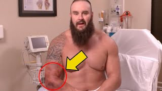 The Full Extent Of Braun Strowman's Injury